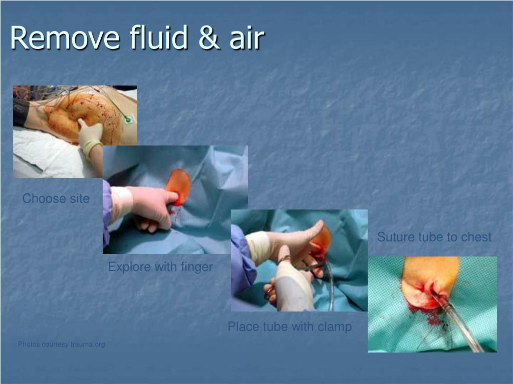 Remove fluid & air