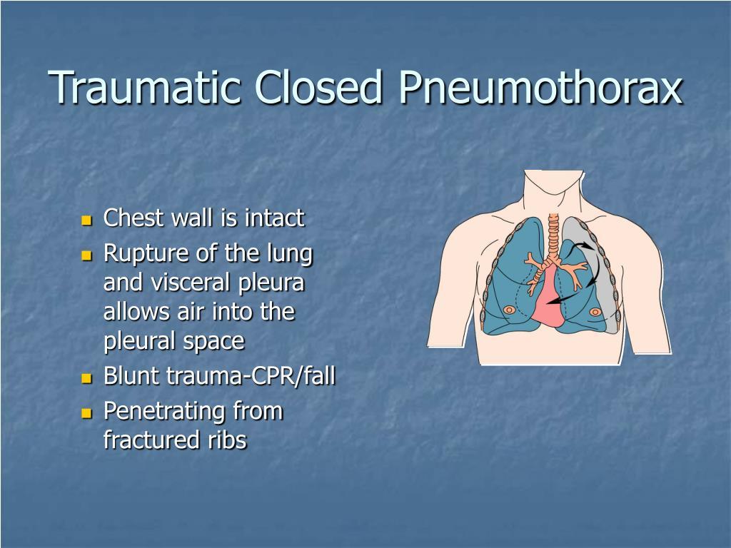 Traumatic Closed Pneumothorax