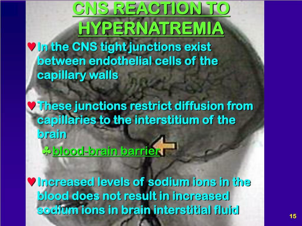 CNS REACTION TO HYPERNATREMIA