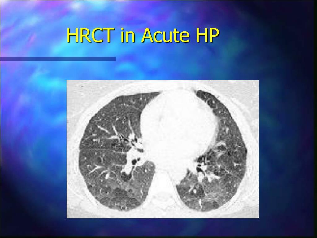 HRCT in Acute HP