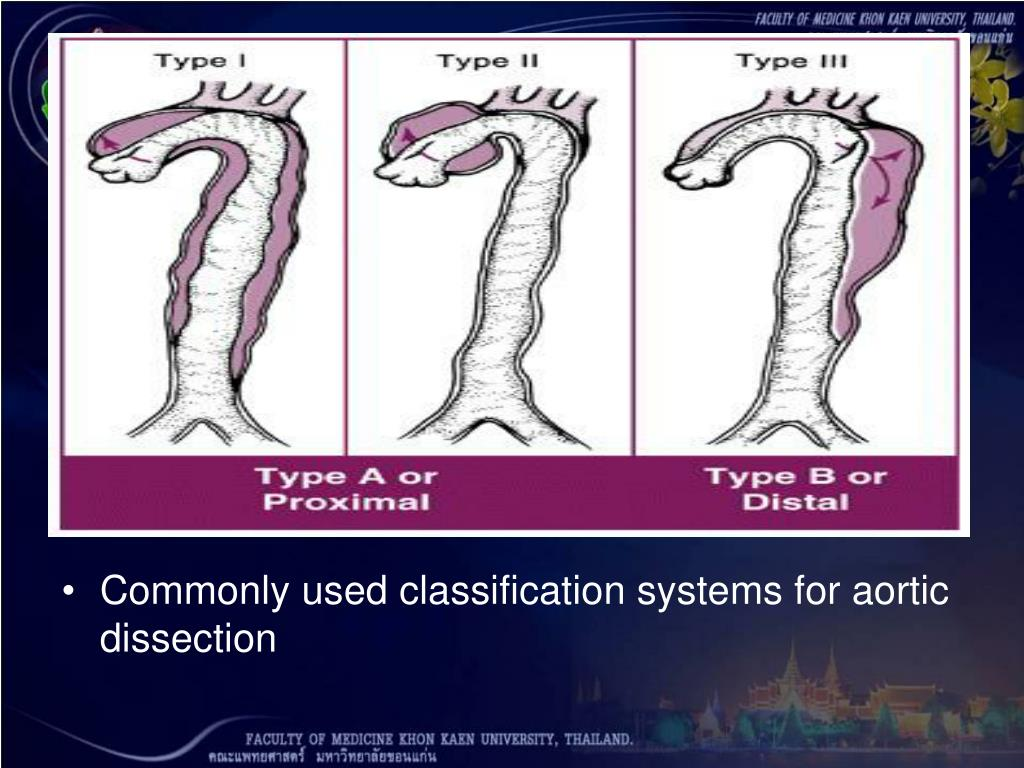 Commonly used classification systems for aortic dissection