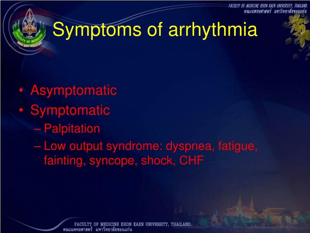 Symptoms of arrhythmia