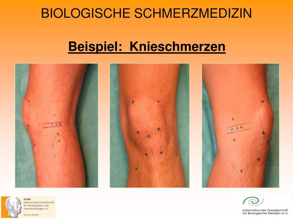 Beispiel:  Knieschmerzen