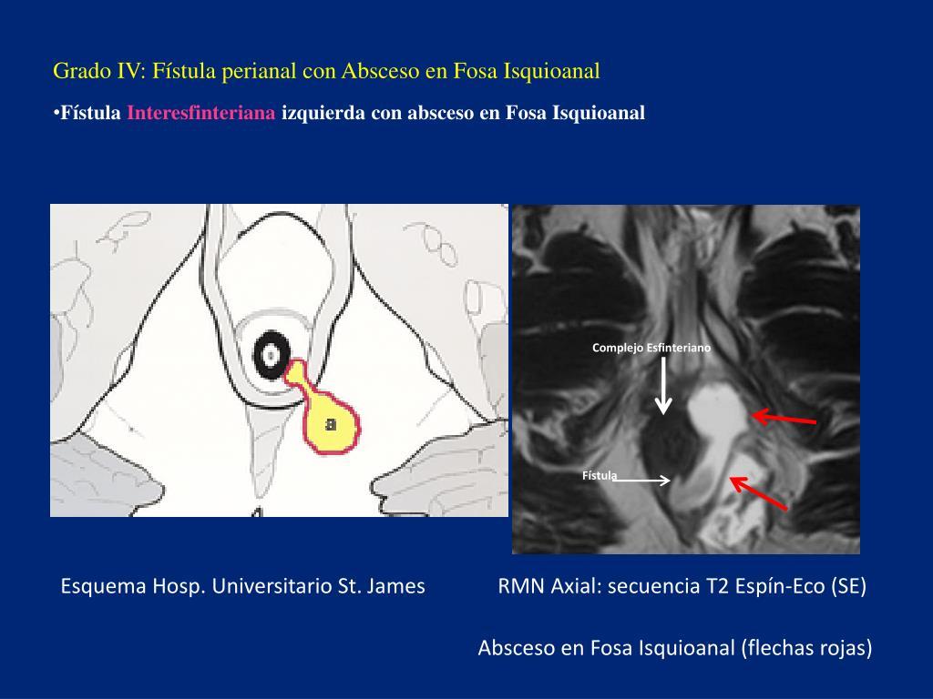 Grado IV: Fístula perianal con Absceso en Fosa Isquioanal