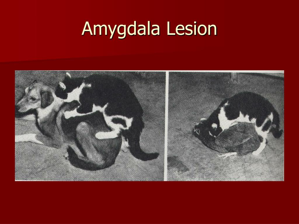 Amygdala Lesion