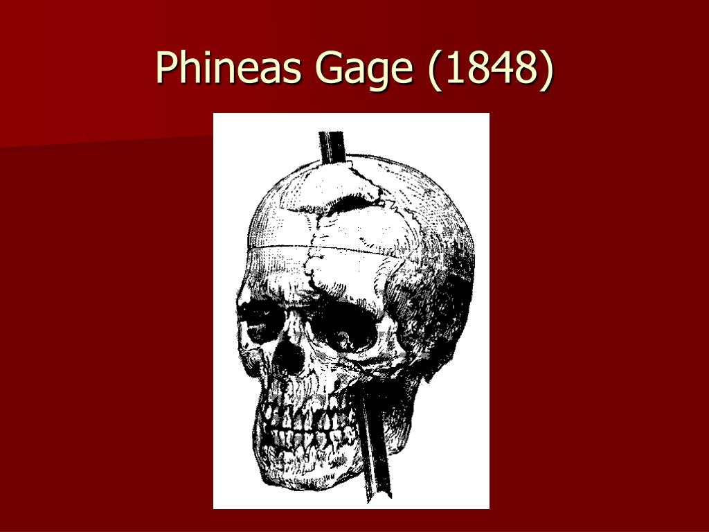 Phineas Gage (1848)