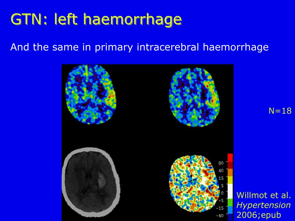 GTN: left haemorrhage