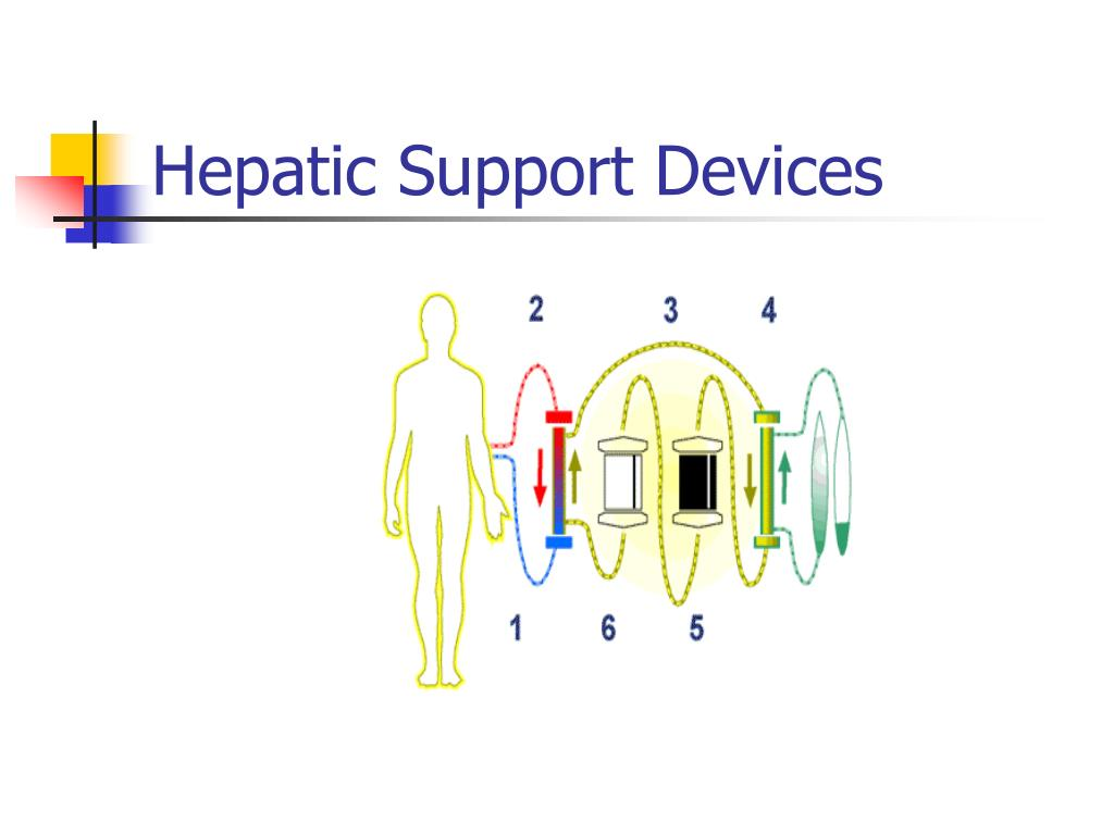 Hepatic Support Devices