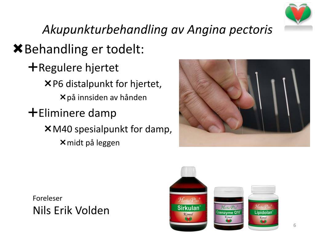Akupunkturbehandling av Angina