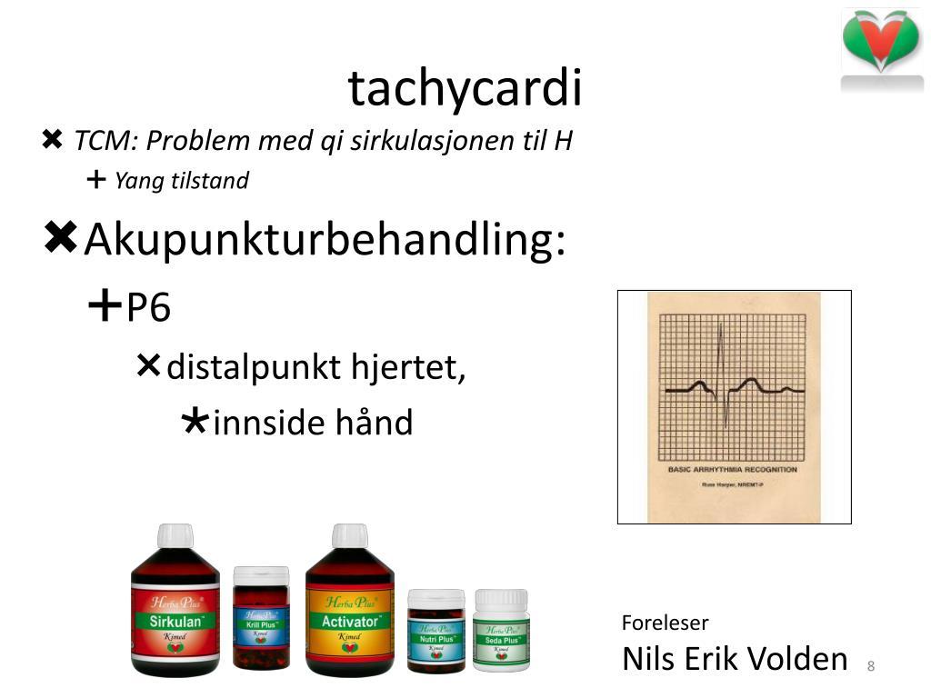 tachycardi