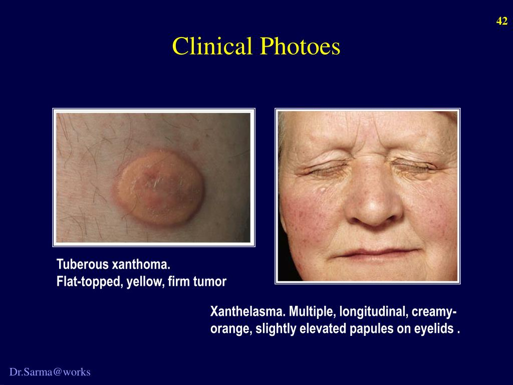 Clinical Photoes