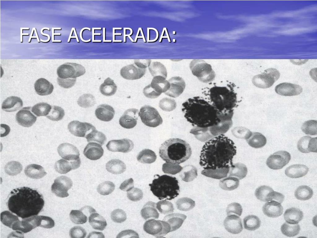 FASE ACELERADA: