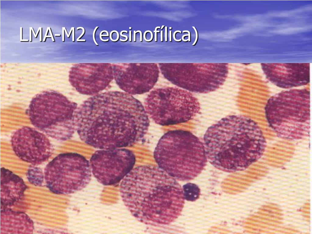 LMA-M2 (eosinofílica)