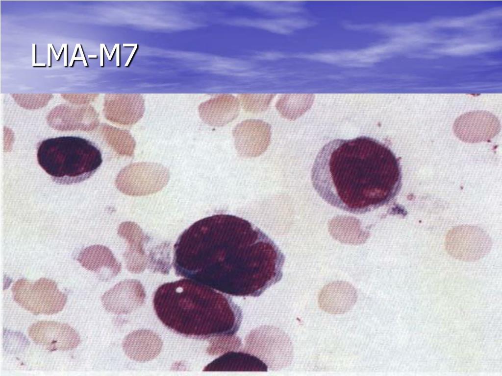 LMA-M7