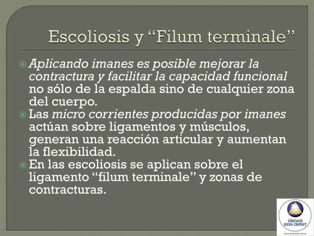 "Escoliosis y ""Filum terminale"""