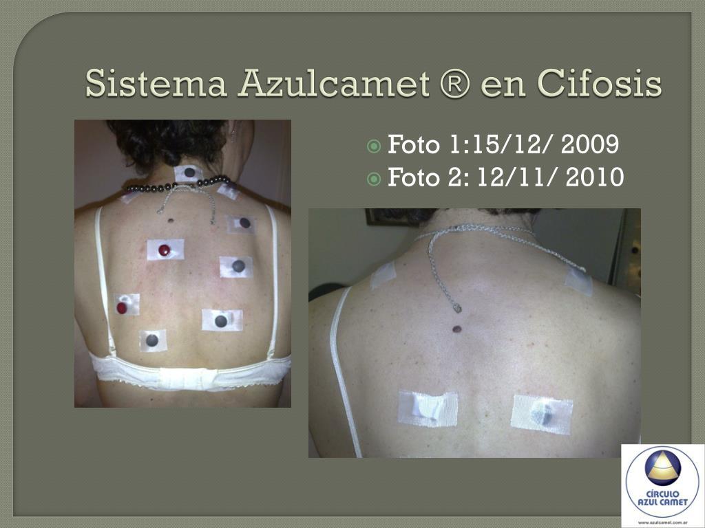 Sistema Azulcamet ® en Cifosis