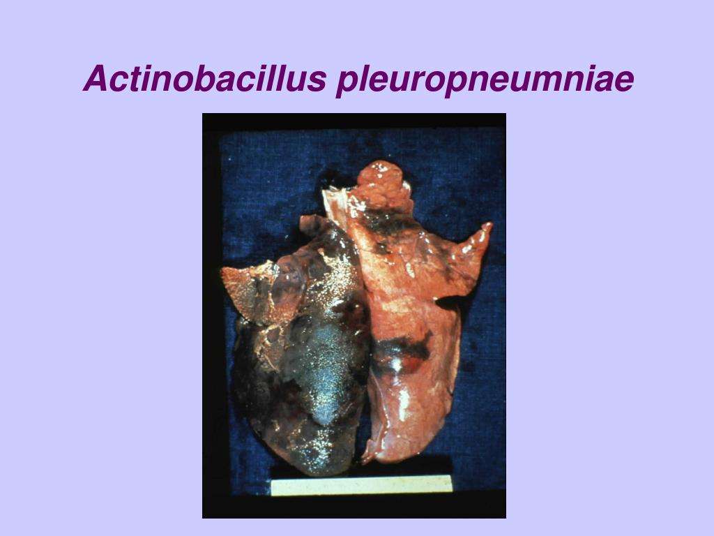Actinobacillus pleuropneumniae