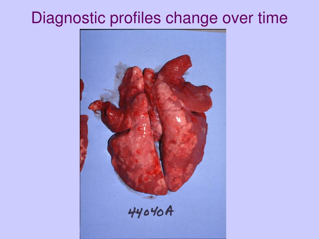 Diagnostic profiles change over time