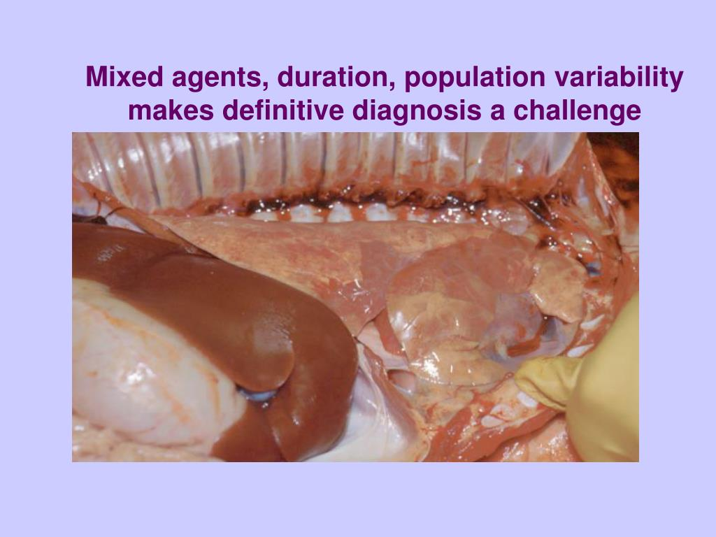 Mixed agents, duration, population variability makes definitive diagnosis a challenge