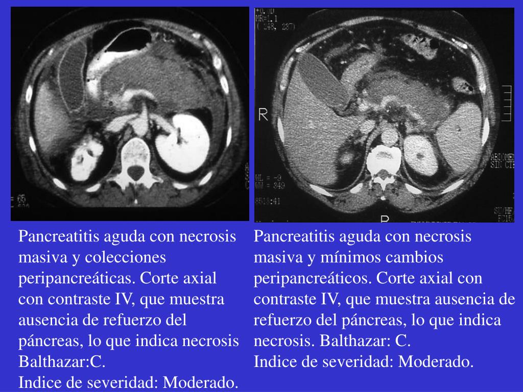 Pancreatitis aguda con necrosis masiva y colecciones peripancreáticas. Corte axial con contraste IV, que muestra ausencia de refuerzo del páncreas, lo que indica necrosis Balthazar:C.