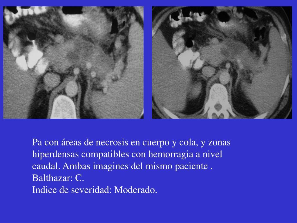 Pa con áreas de necrosis en cuerpo y cola, y zonas hiperdensas compatibles con hemorragia a nivel caudal. Ambas imagines del mismo paciente .