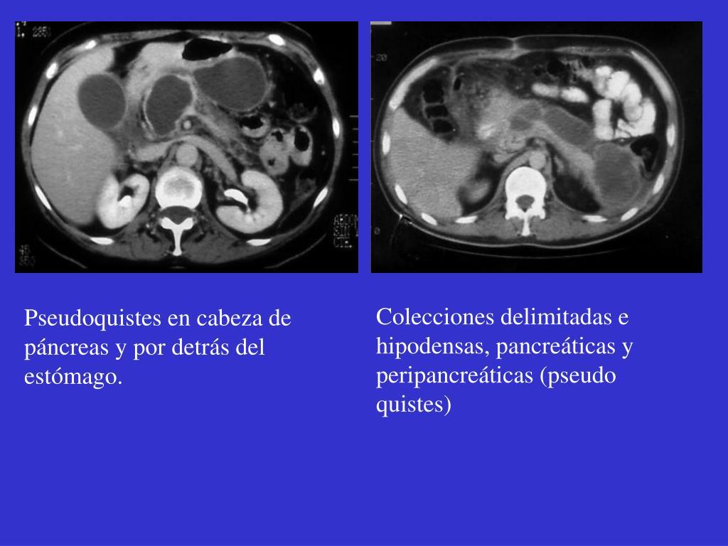 Colecciones delimitadas e hipodensas, pancreáticas y peripancreáticas (pseudo quistes)