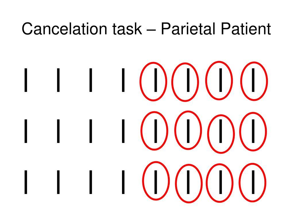 Cancelation task – Parietal Patient