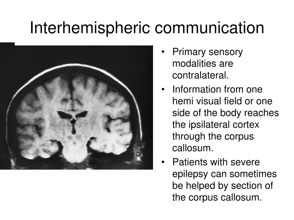 Primary sensory modalities are contralateral.