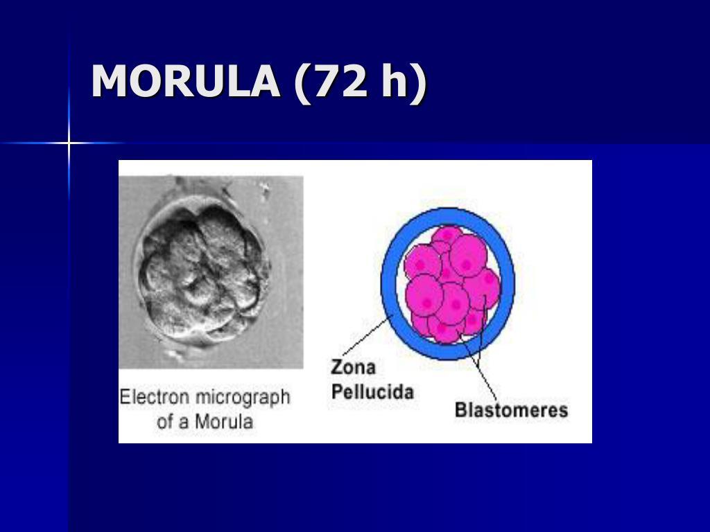 MORULA (72 h)