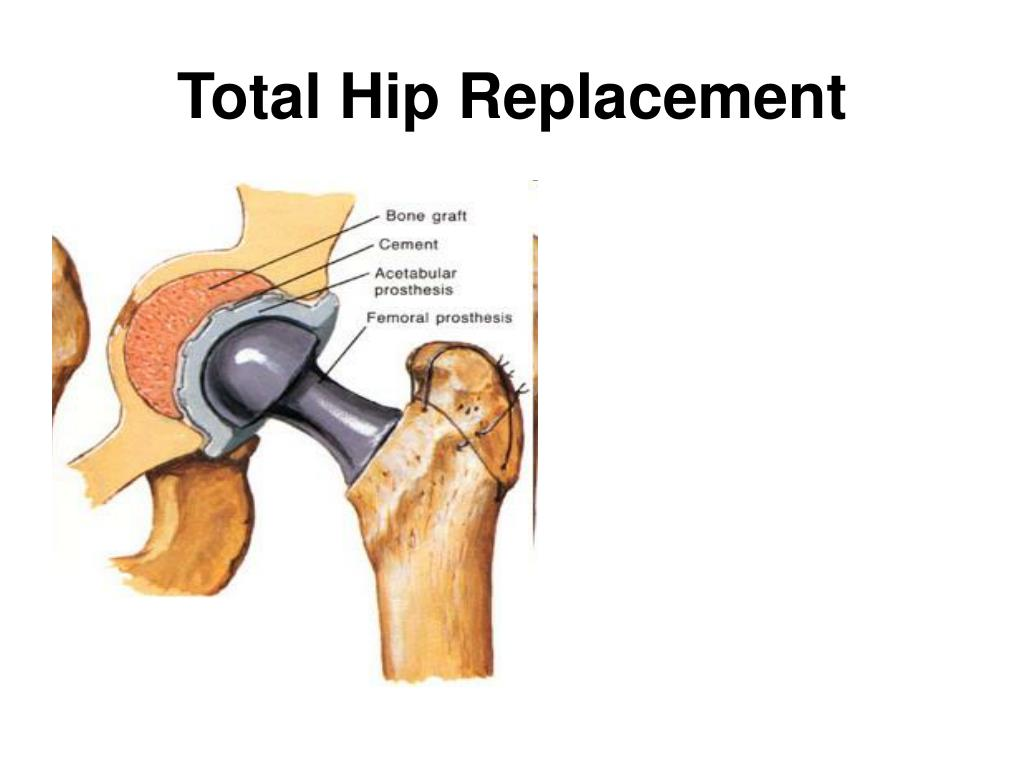 hip replacement surgery engineering Hip replacement surgery has gone through tremendous evolution since  taken  by author from a skeleton in our biomedical engineering lab,.