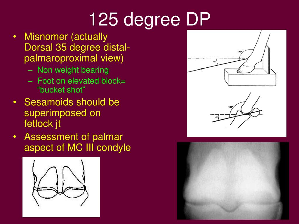 125 degree DP