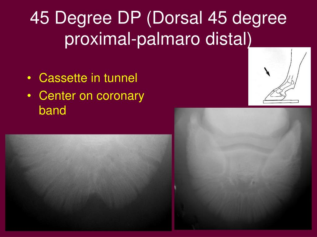 45 Degree DP (Dorsal 45 degree proximal-palmaro distal)