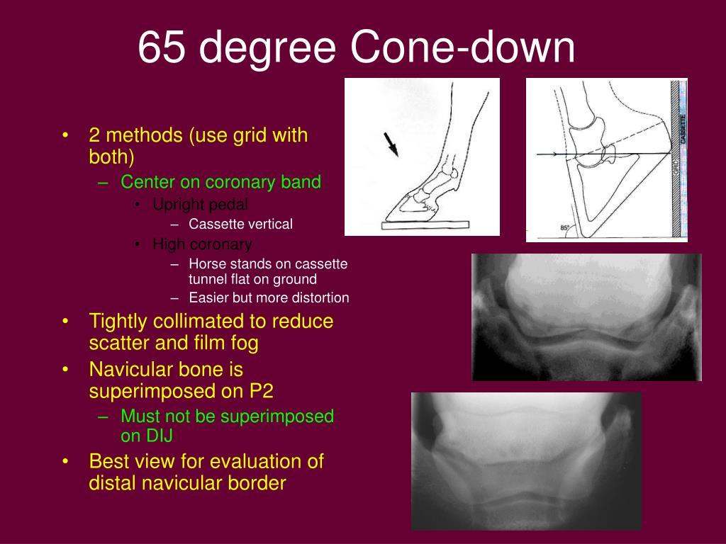 65 degree Cone-down