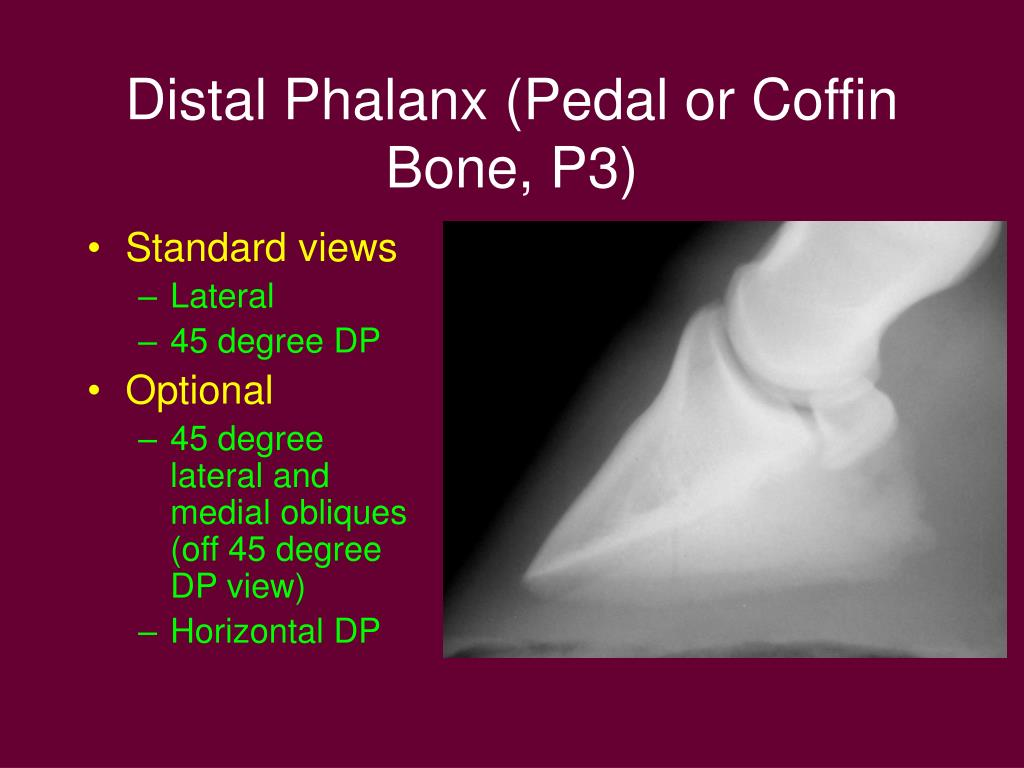 Distal Phalanx (Pedal or Coffin Bone, P3)