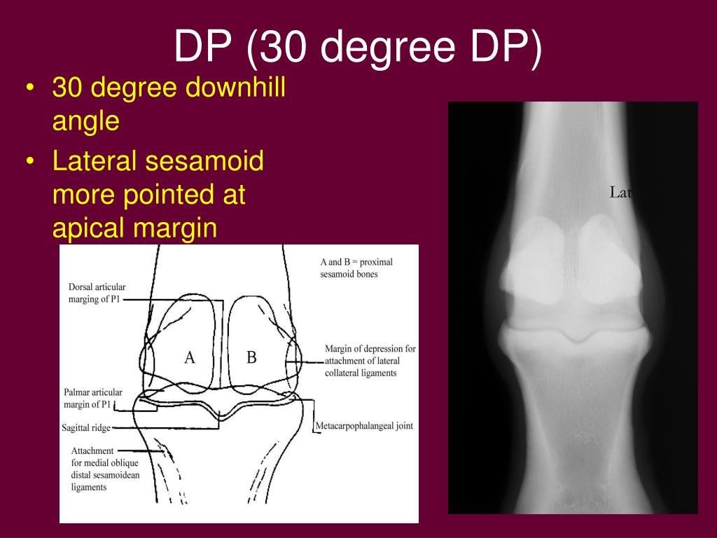 DP (30 degree DP)