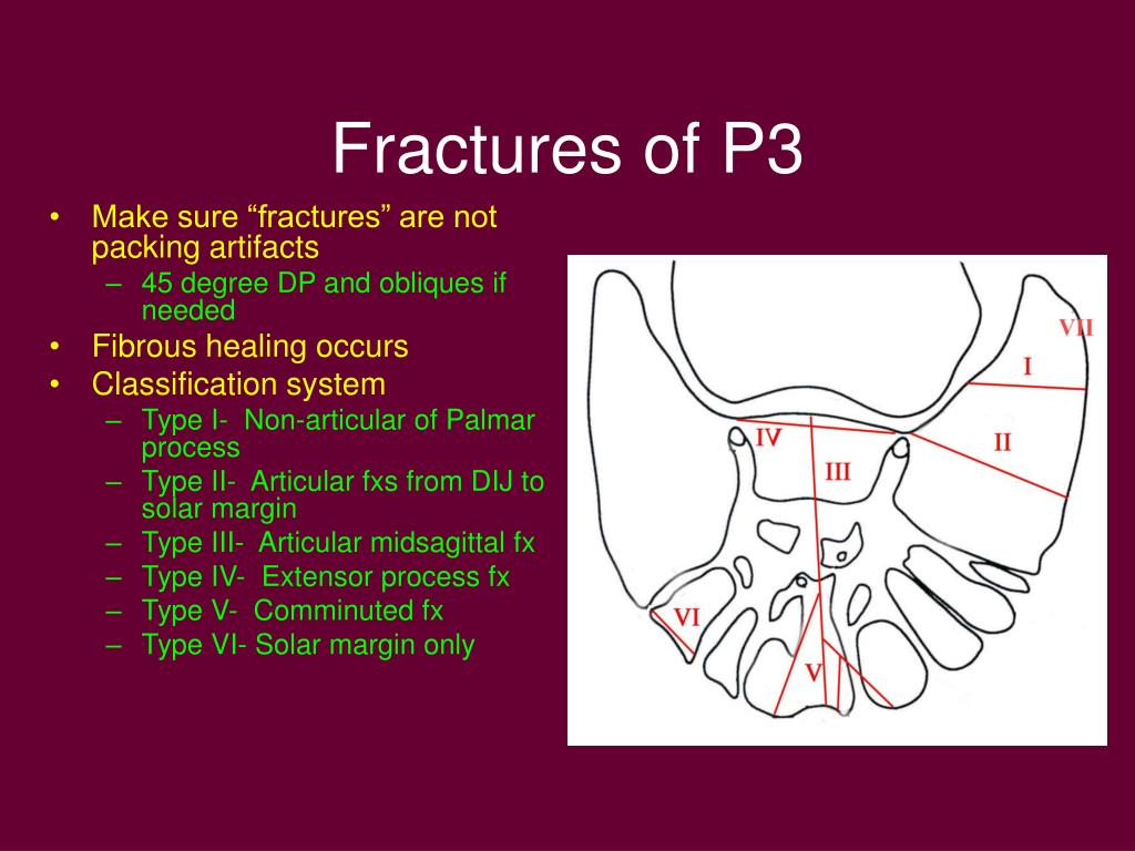 Fractures of P3