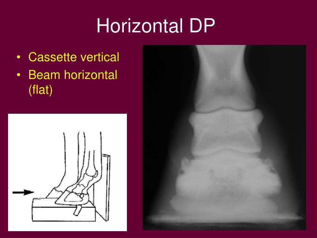 Horizontal DP