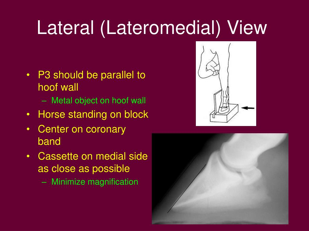 Lateral (Lateromedial) View