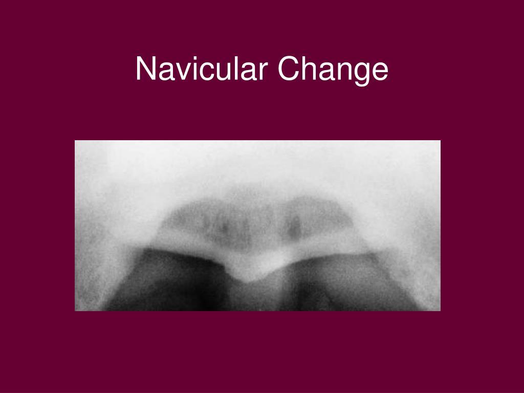 Navicular Change