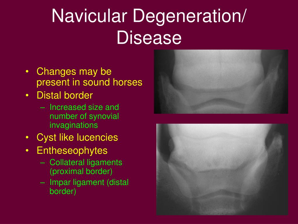 Navicular Degeneration/ Disease