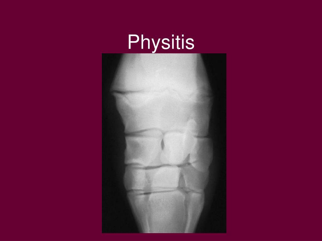 Physitis