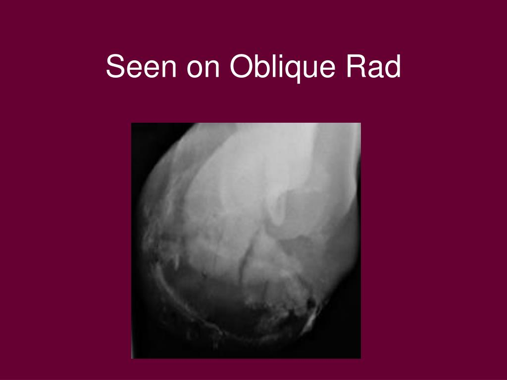 Seen on Oblique Rad