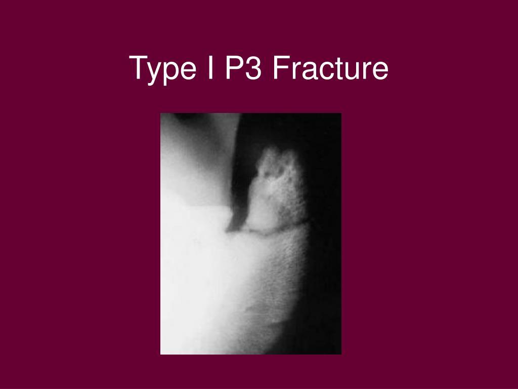 Type I P3 Fracture