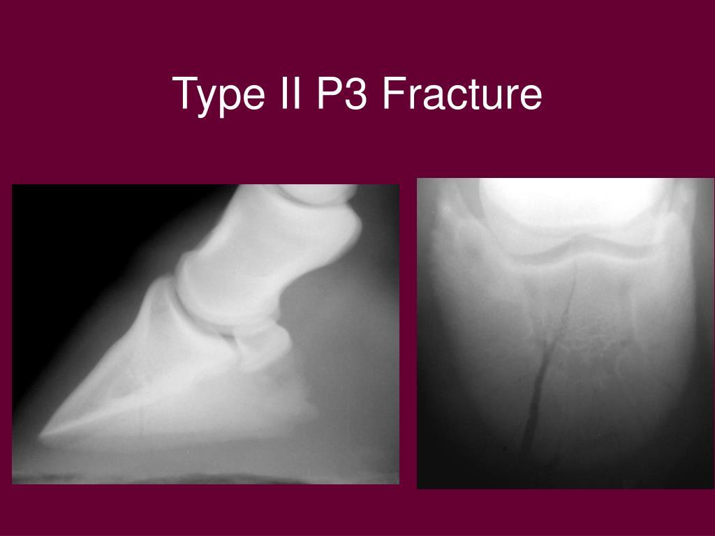 Type II P3 Fracture