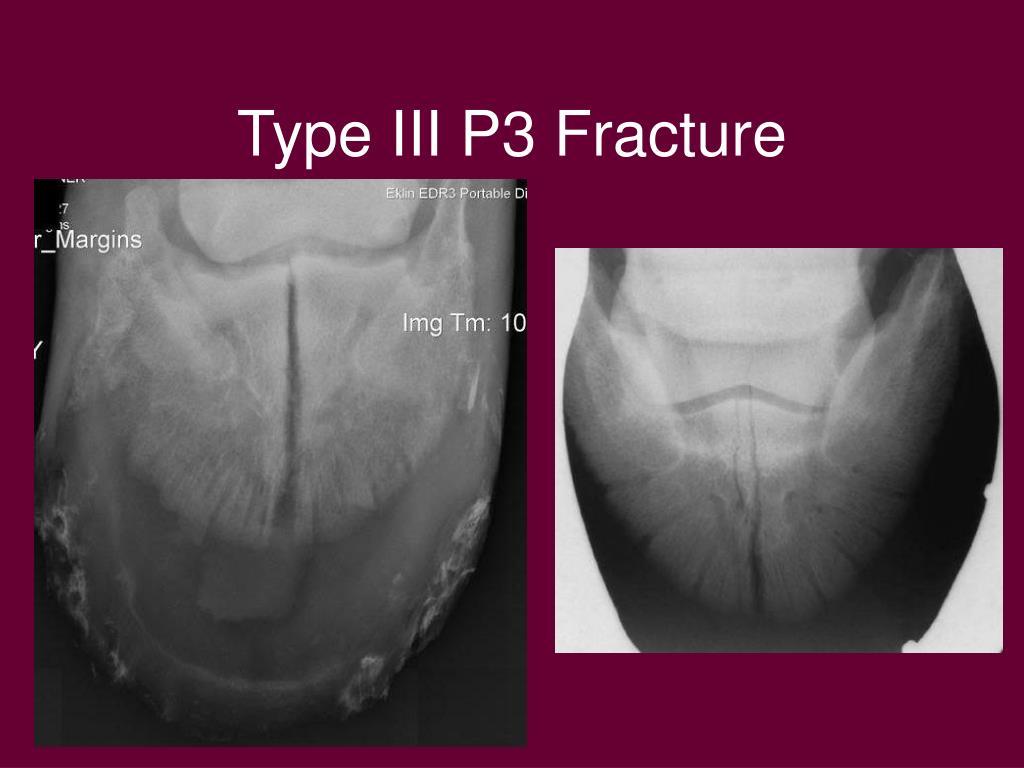 Type III P3 Fracture
