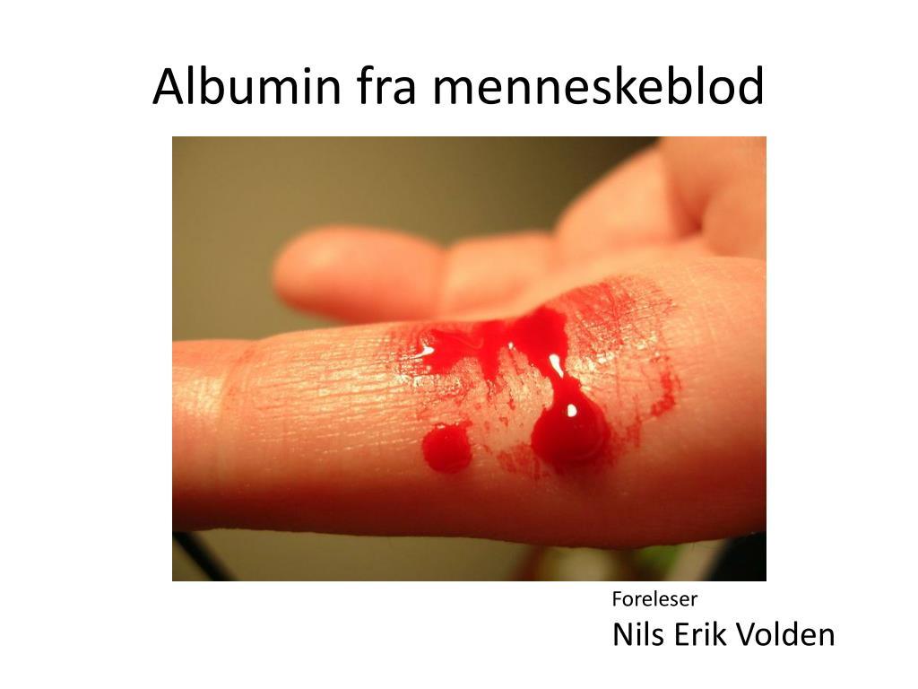 Albumin fra menneskeblod