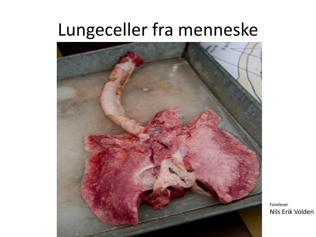 Lungeceller fra menneske