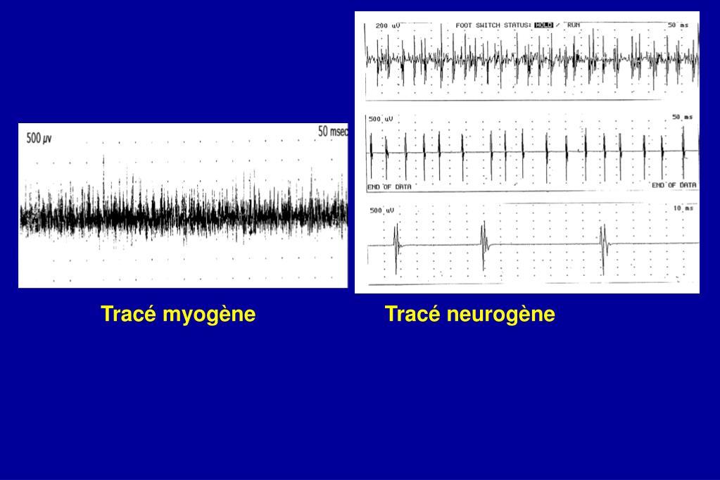 Ppt transmission de l influx nerveux bases emg en for Influx nerveux