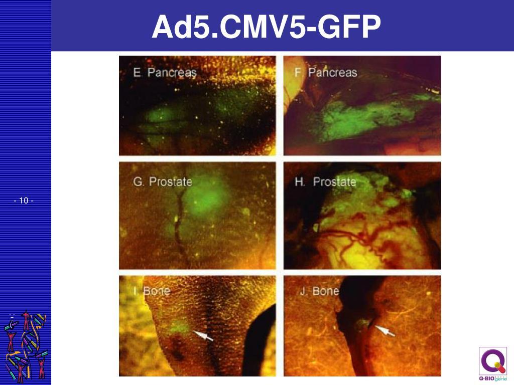 Ad5.CMV5-GFP