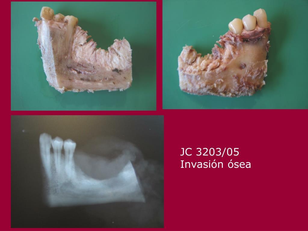 JC 3203/05  Invasión ósea